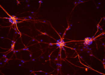 Neurons from a mouse spinal cord. (Photo credit: NICHD/S. Jeong)