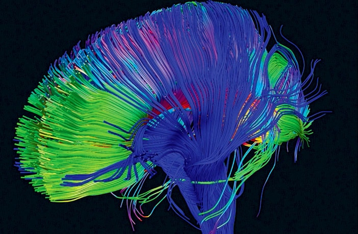 LSD changes communication patterns between regions of the brain, a new study shows